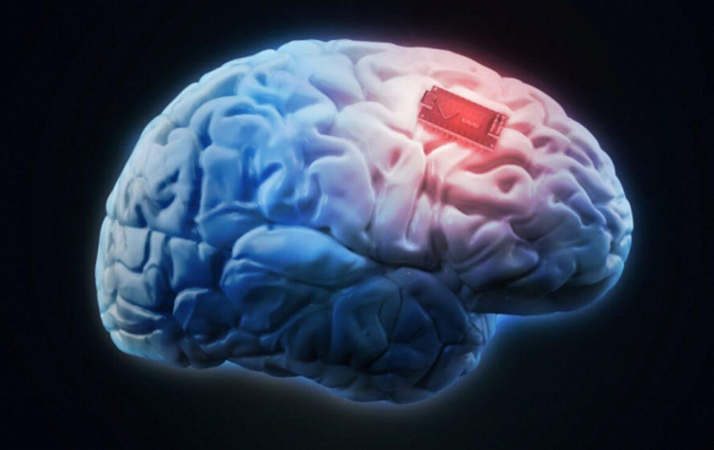 A fost inventat implantul wireless pentru creier,controlat prin smartphone